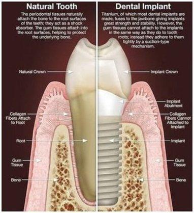Eric Horecky | Implants in Mount Pleasant