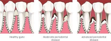 Eric Horecky Periodontal Scaling And Root Planing In Mount Pleasant
